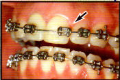 Longmont Dental Emergency Braces