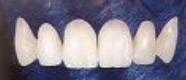Dental Bridge Restoring Missing Teeth