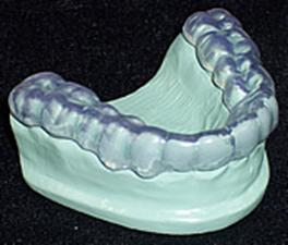 Bruxism - Dental Splint TMJ - Longmont Family Dentist
