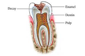 Dental Cavities - Longmont Family Dentist