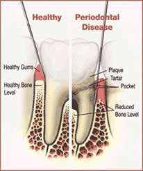 Gum/Periodontal Disease - Longmont Family Dentist