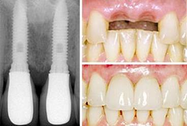 Dental Implants - Longmont Family Dentist