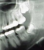Wisdom Teeth Third Molars - Longmont Family Dentist