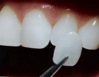 Dental Veneers - Longmont Family Dentist
