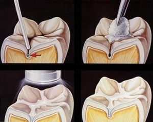 Dental Sealants - Longmont Family Dentist